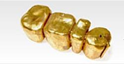 金歯も金として買い取り可能!